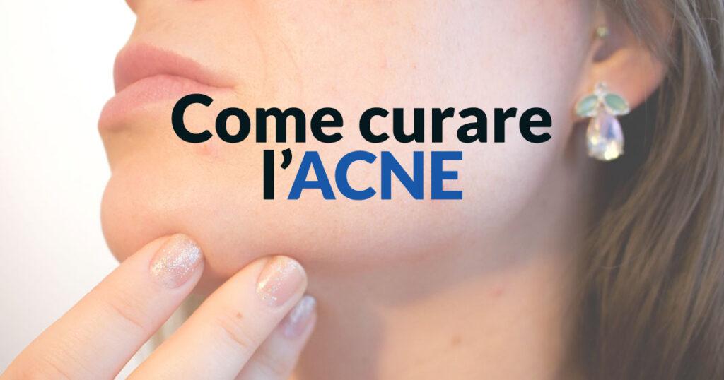 Come curare l'acne - Dermatologo Specialista
