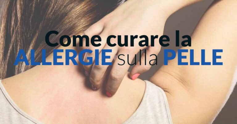 Come curare le allergie sulla pelle - Dermatologo Specialista