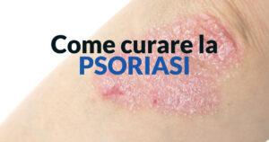 Come curare la psoriasi - Dott. Stefano Veglio