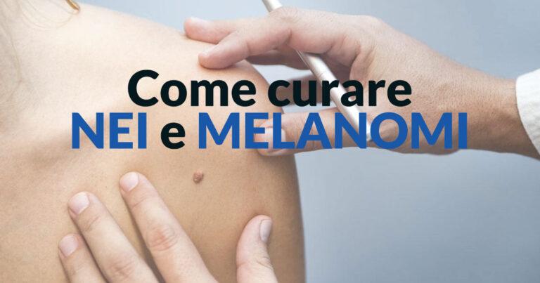 Come curare nei e melanomi - Stefano Veglio